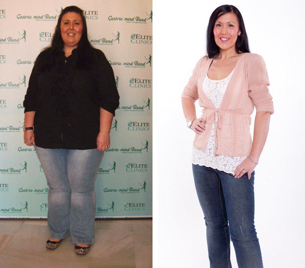 Sara Hart lost 140 pounds with the Shirrans weight loss treatment