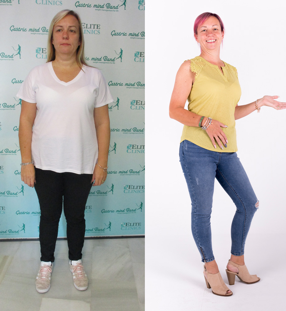 Sharon's Weight Loss Story