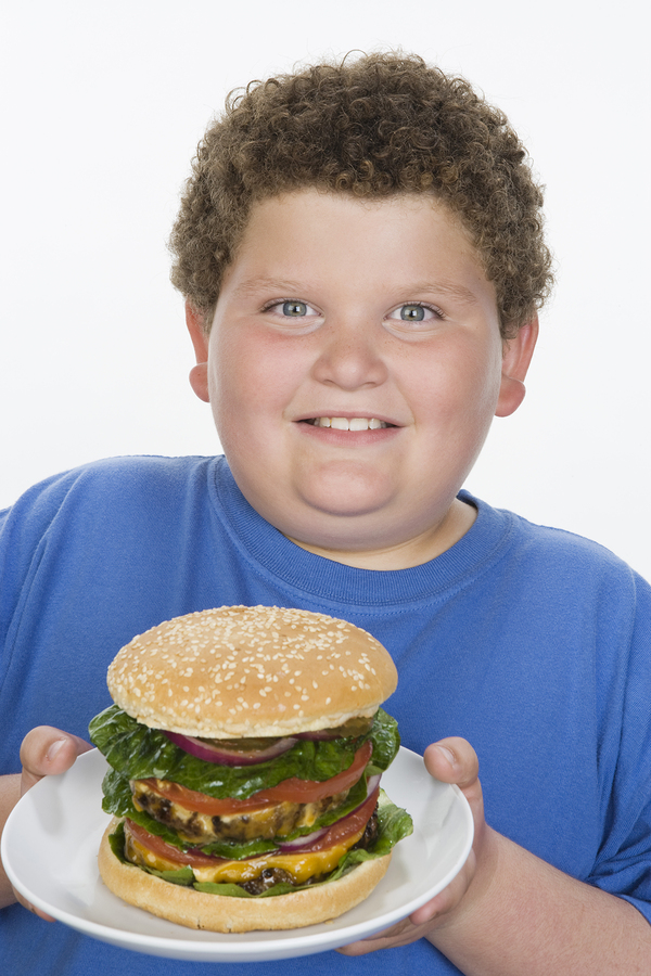 Obese Children need to exercise